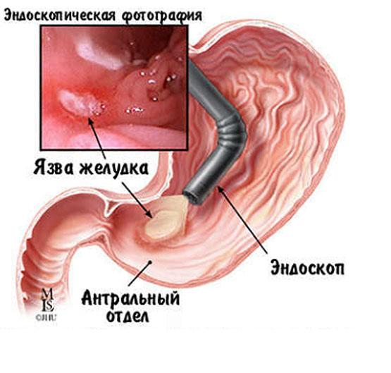 Ошибки и осложнения при лечении твердых тканей зуба